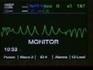 id44.com emt paramedic cardiac monitor